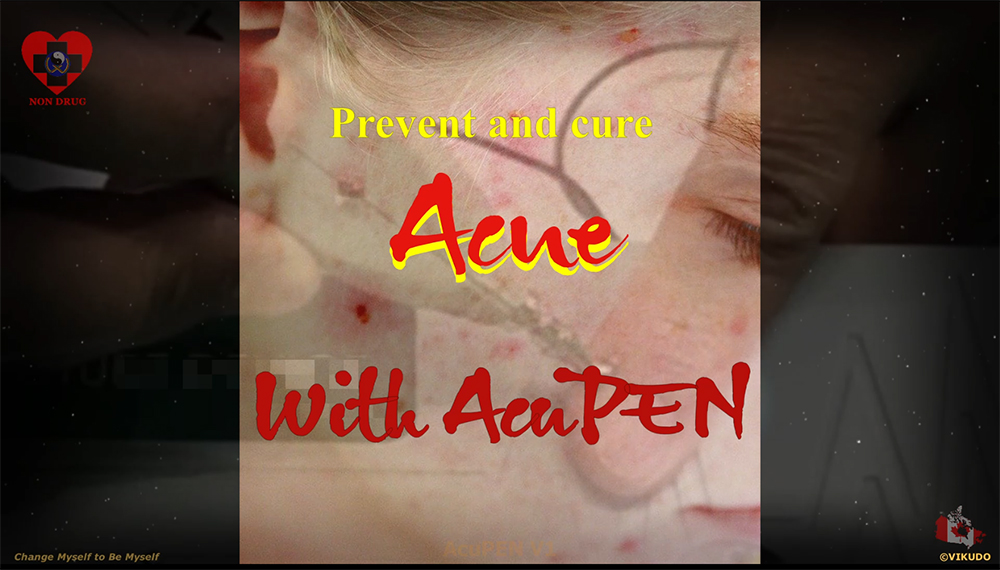 Acupen V1 _ Prevent and Treat ACNE with AcuPEN _ Electro Acupuncture Pen