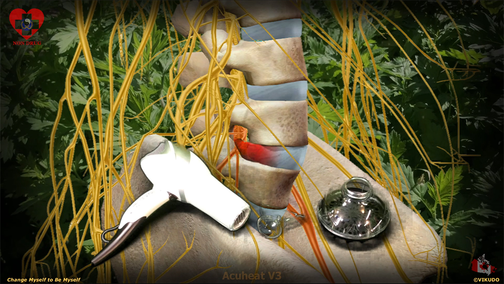 Acuheat V3 _ Prevent and treat lumbar herniated disc with a hairdryer and mugwort